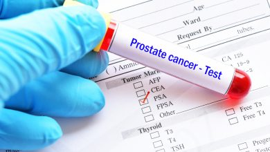 Photo of Junk Science? Number 18: The PSA Test for Prostate Cancer
